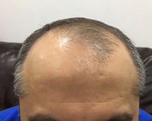Hair Transplant Results Before & After | Fortes Clinic