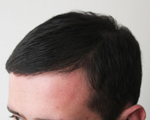 Norwood class 2 hair loss after