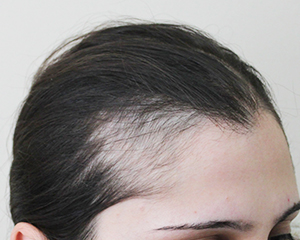 Traction alopecia before