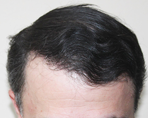 Norwood hair loss after