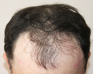 Norwood hair loss before