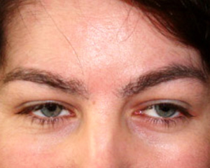 Eyebrow transplant after